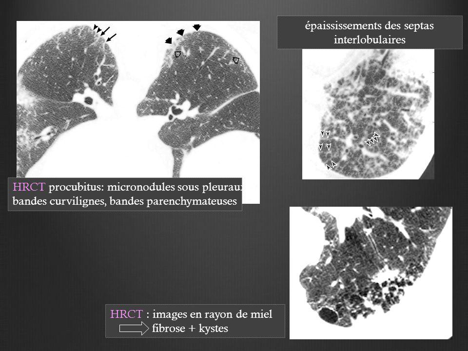 HRCT procubitus: micronodules sous pleuraux, bandes curvilignes, bandes parenchymateuses épaississements des septas interlobulaires HRCT : images en rayon de miel fibrose + kystes