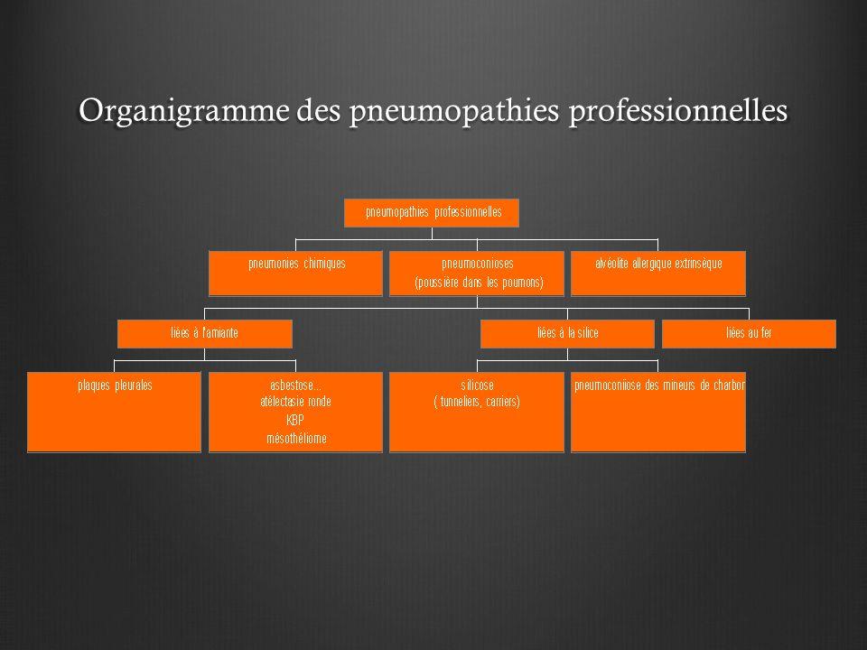 Silicose Corrélations anatomo-radiologiques: SILICOSE COMPLIQUÉE: Pseudo-plaques:  Confluence des nodules sous-pleuraux.