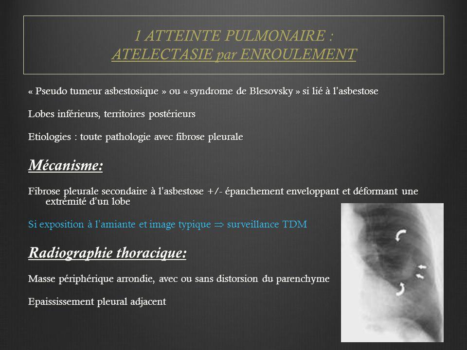 « Pseudo tumeur asbestosique » ou « syndrome de Blesovsky » si lié à l'asbestose Lobes inférieurs, territoires postérieurs Etiologies : toute pathologie avec fibrose pleurale Mécanisme: Fibrose pleurale secondaire à l'asbestose +/- épanchement enveloppant et déformant une extrémité d'un lobe Si exposition à l'amiante et image typique  surveillance TDM Radiographie thoracique: Masse périphérique arrondie, avec ou sans distorsion du parenchyme Epaississement pleural adjacent 1 ATTEINTE PULMONAIRE : ATELECTASIE par ENROULEMENT