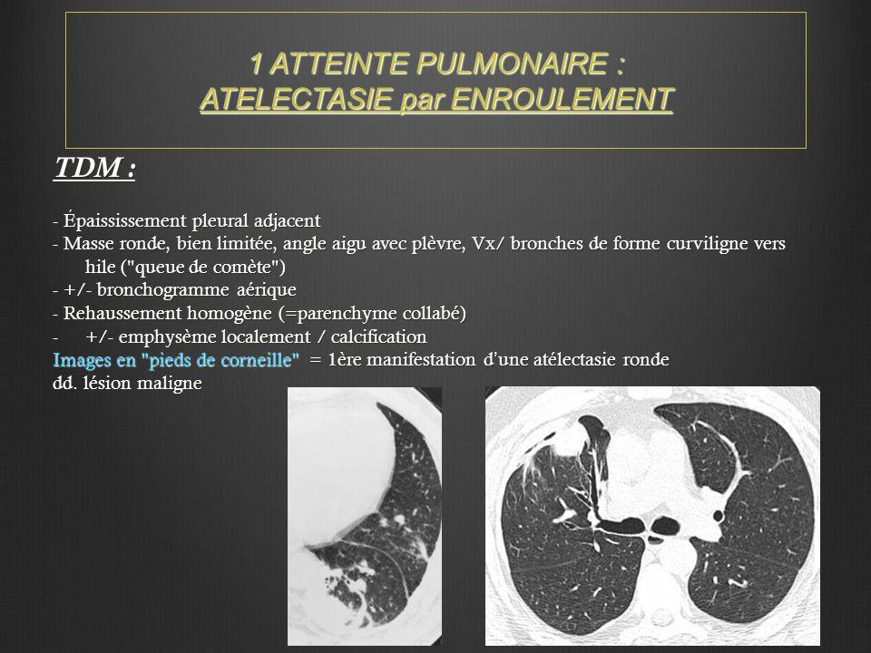 1 ATTEINTE PULMONAIRE : ATELECTASIE par ENROULEMENT TDM : - Épaississement pleural adjacent - Masse ronde, bien limitée, angle aigu avec plèvre, Vx/ b