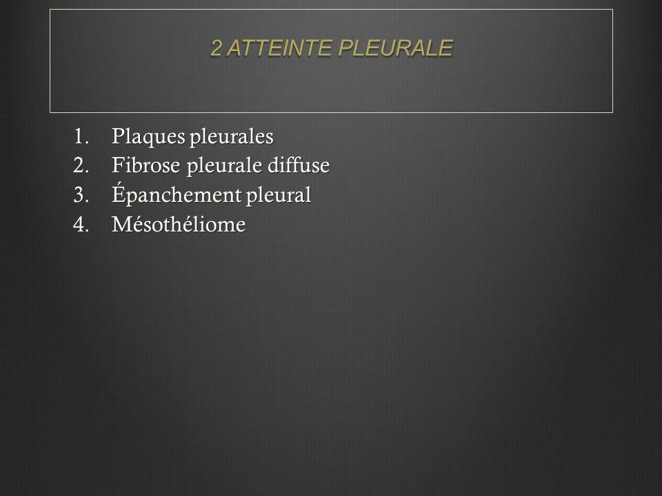 2 ATTEINTE PLEURALE 1.Plaques pleurales 2.Fibrose pleurale diffuse 3.Épanchement pleural 4.Mésothéliome