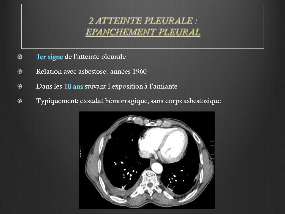 2 ATTEINTE PLEURALE : EPANCHEMENT PLEURAL 1er signe de l'atteinte pleurale Relation avec asbestose: années 1960 Dans les 10 ans suivant l'exposition à l'amiante Typiquement: exsudat hémorragique, sans corps asbestosique