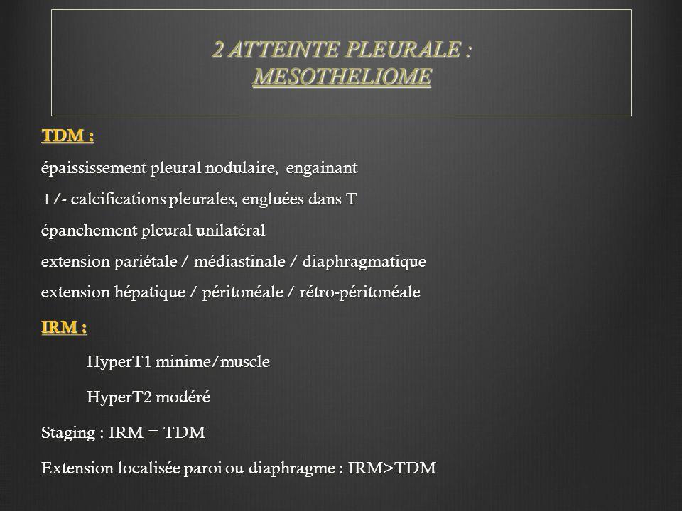 2 ATTEINTE PLEURALE : MESOTHELIOME TDM : épaississement pleural nodulaire, engainant +/- calcifications pleurales, engluées dans T épanchement pleural unilatéral extension pariétale / médiastinale / diaphragmatique extension hépatique / péritonéale / rétro-péritonéale IRM : HyperT1 minime/muscle HyperT2 modéré Staging : IRM = TDM Extension localisée paroi ou diaphragme : IRM>TDM