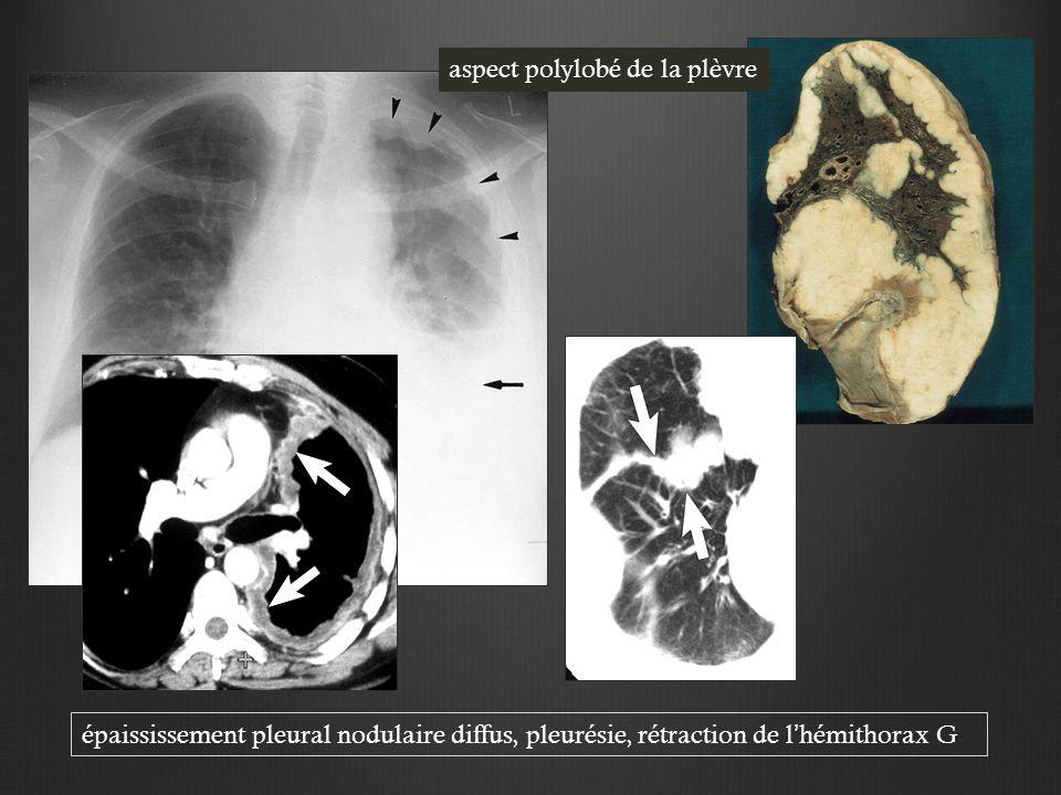 épaississement pleural nodulaire diffus, pleurésie, rétraction de l'hémithorax G aspect polylobé de la plèvre