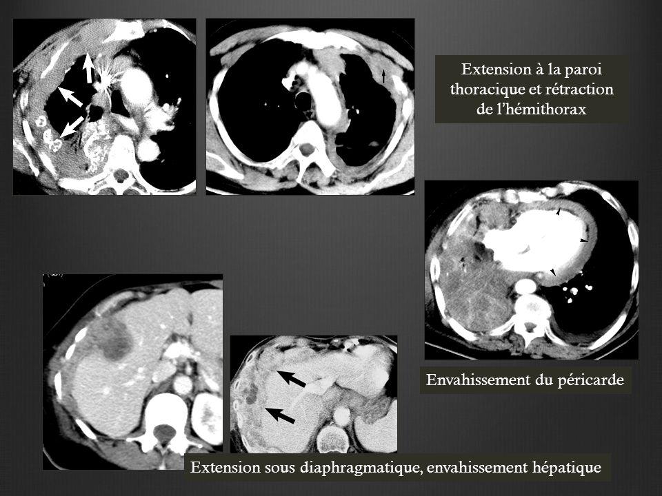 Extension à la paroi thoracique et rétraction de l'hémithorax Envahissement du péricarde Extension sous diaphragmatique, envahissement hépatique