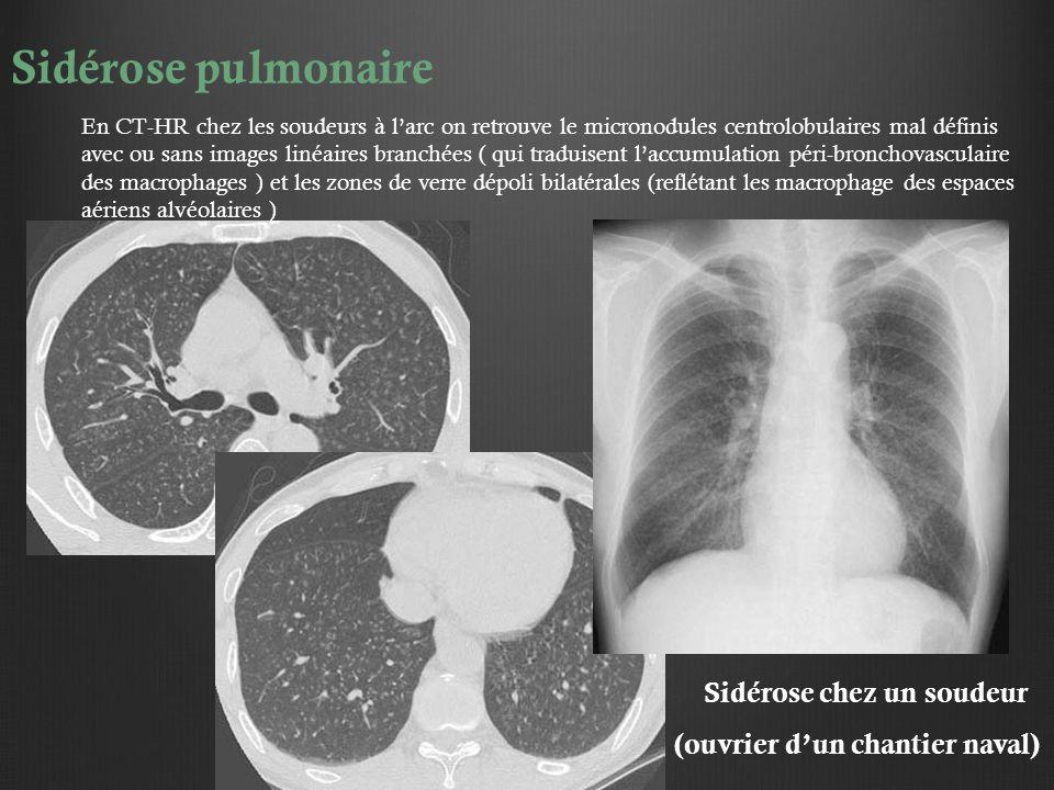Sidérose pulmonaire En CT-HR chez les soudeurs à l'arc on retrouve le micronodules centrolobulaires mal définis avec ou sans images linéaires branchée