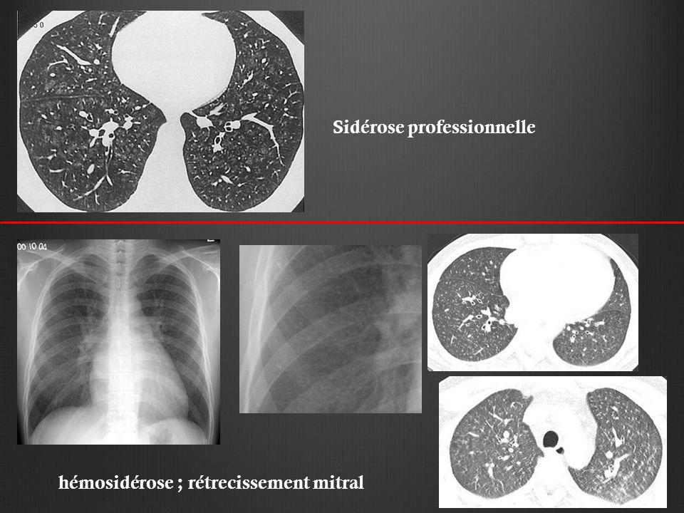 Sidérose professionnelle hémosidérose ; rétrecissement mitral