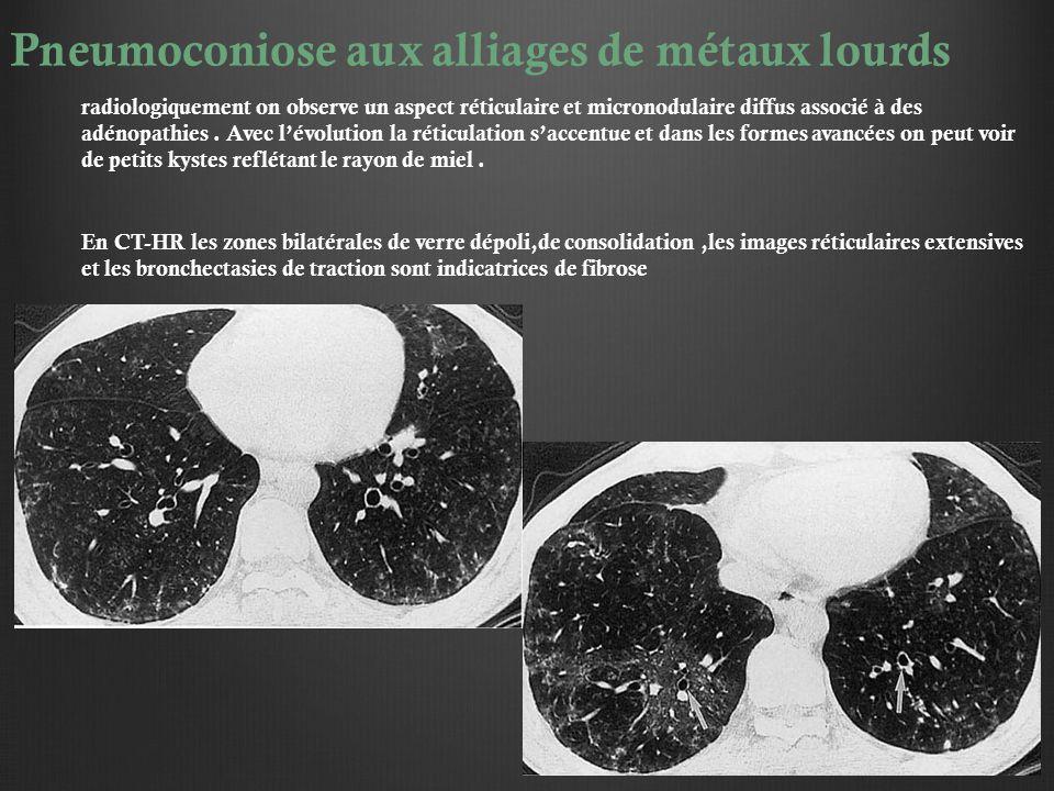 Pneumoconiose aux alliages de métaux lourds radiologiquement on observe un aspect réticulaire et micronodulaire diffus associé à des adénopathies. Ave