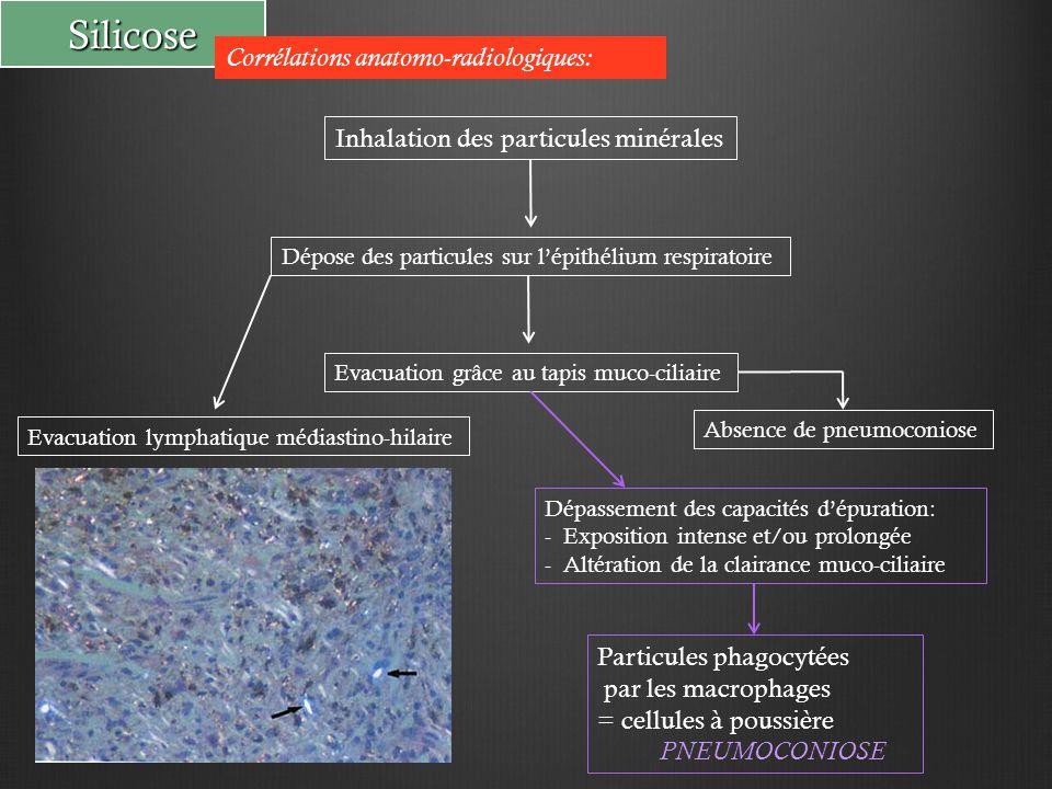 Inhalation particules (silice)  alvéole Phagocytées par macrophages Passage dans l'interstitium Mort cellulaire suite à la toxicité des particules  Inflammation Fibroblastes  fibrose  nodules