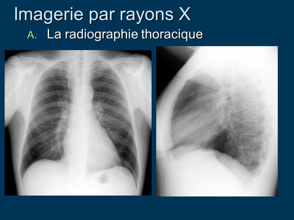 Imagerie par rayons X Imagerie par rayons X A. La radiographie thoracique