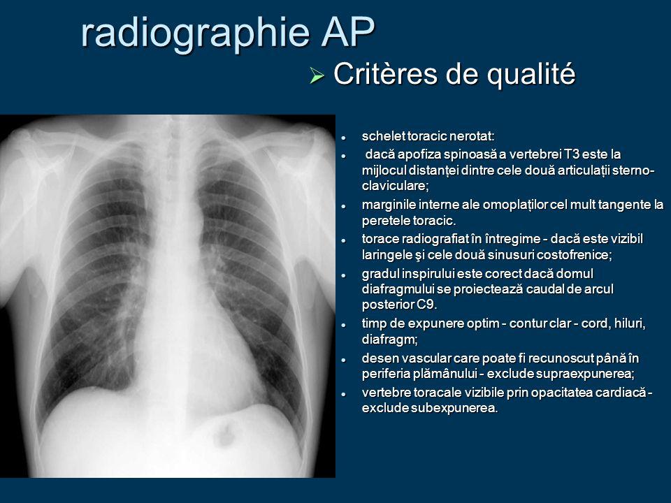 radiographie AP  Critères de qualité schelet toracic nerotat: schelet toracic nerotat: dacă apofiza spinoasă a vertebrei T3 este la mijlocul distanţe