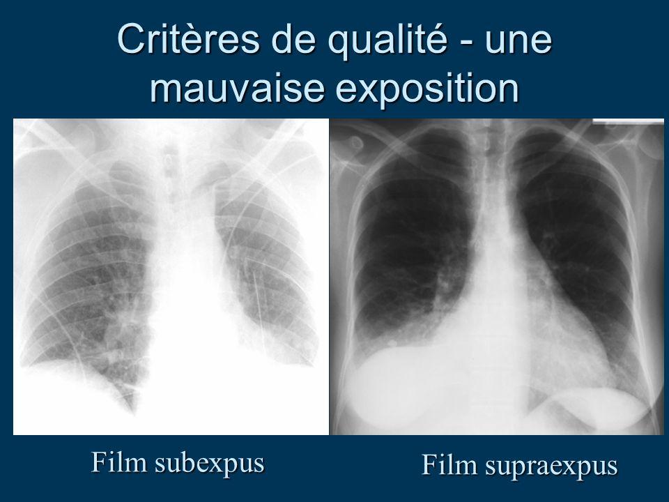 Critères de qualité - une mauvaise exposition Film subexpus Film supraexpus