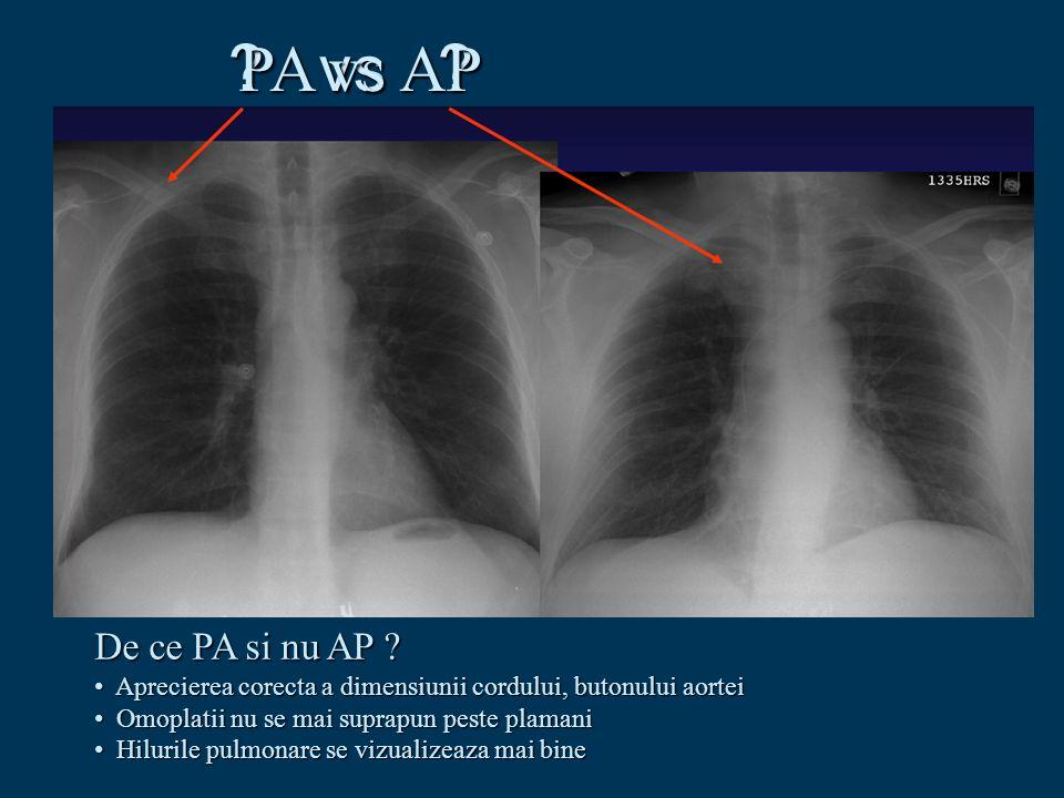 ? vs ? De ce PA si nu AP ? Aprecierea corecta a dimensiunii cordului, butonului aortei Aprecierea corecta a dimensiunii cordului, butonului aortei Omo