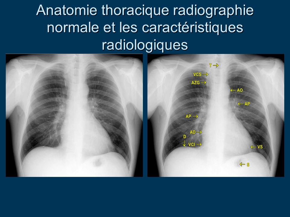 Anatomie thoracique radiographie normale et les caractéristiques radiologiques
