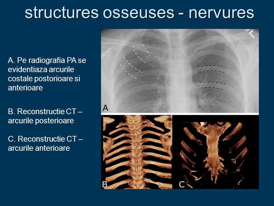 structures osseuses - nervures A. Pe radiografia PA se evidentiaza arcurile costale postorioare si anterioare B. Reconstructie CT – arcurile posterioa
