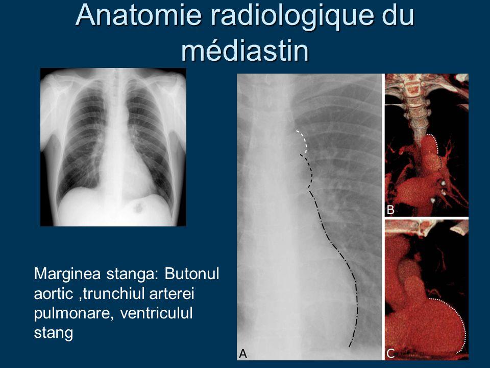 Anatomie radiologique du médiastin Marginea stanga: Butonul aortic,trunchiul arterei pulmonare, ventriculul stang