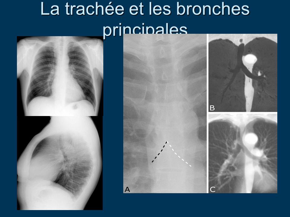 La trachée et les bronches principales