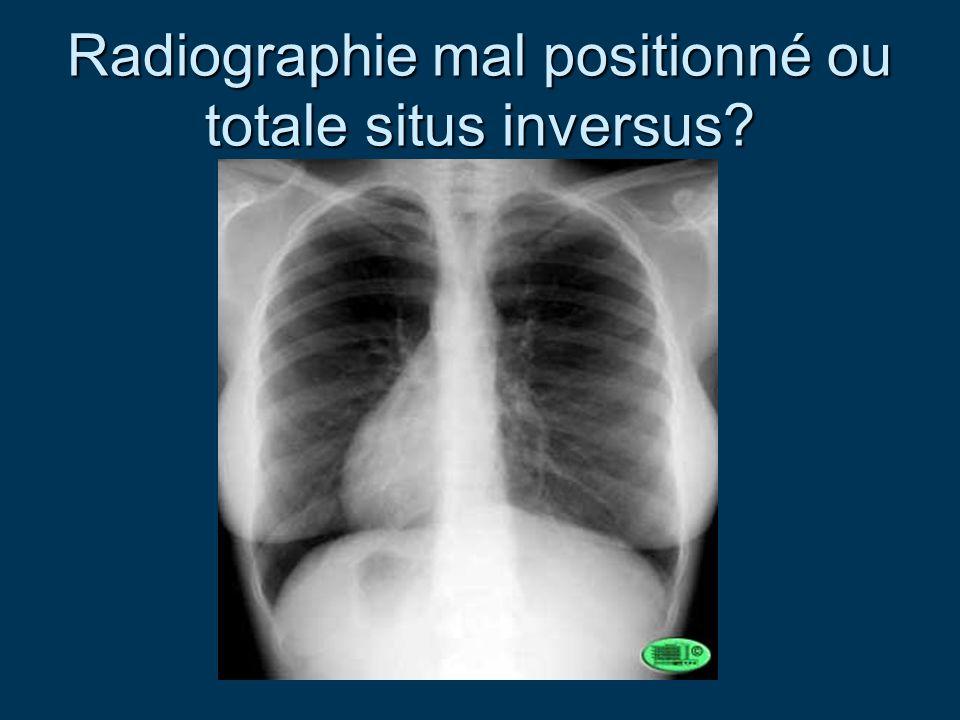 Radiographie mal positionné ou totale situs inversus?