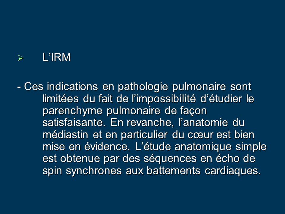  L'IRM - Ces indications en pathologie pulmonaire sont limitées du fait de l'impossibilité d'étudier le parenchyme pulmonaire de façon satisfaisante.