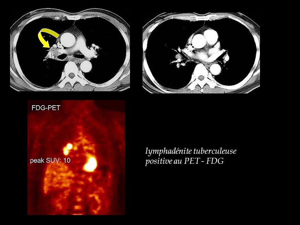 lymphadénite tuberculeuse positive au PET - FDG