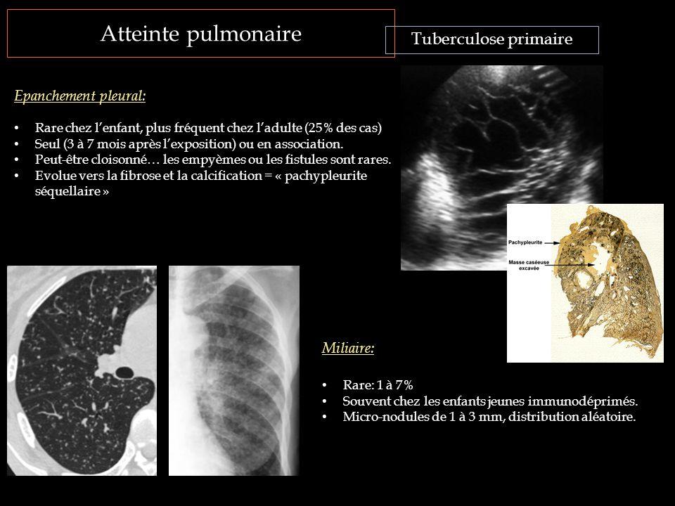 Atteinte pulmonaire Tuberculose primaire Epanchement pleural: Rare chez l'enfant, plus fréquent chez l'adulte (25% des cas) Seul (3 à 7 mois après l'e