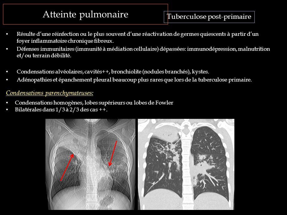 Atteinte pulmonaire Résulte d'une réinfection ou le plus souvent d'une réactivation de germes quiescents à partir d'un foyer inflammatoire chronique f