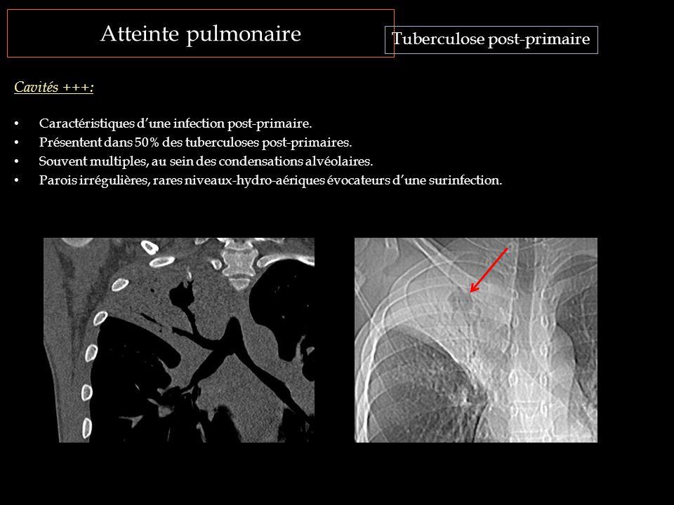 Atteinte pulmonaire Caractéristiques d'une infection post-primaire. Présentent dans 50% des tuberculoses post-primaires. Souvent multiples, au sein de