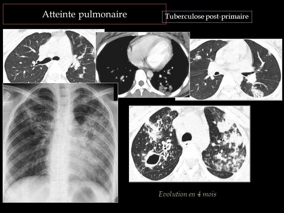 Atteinte pulmonaire Tuberculose post-primaire Evolution en 4 mois