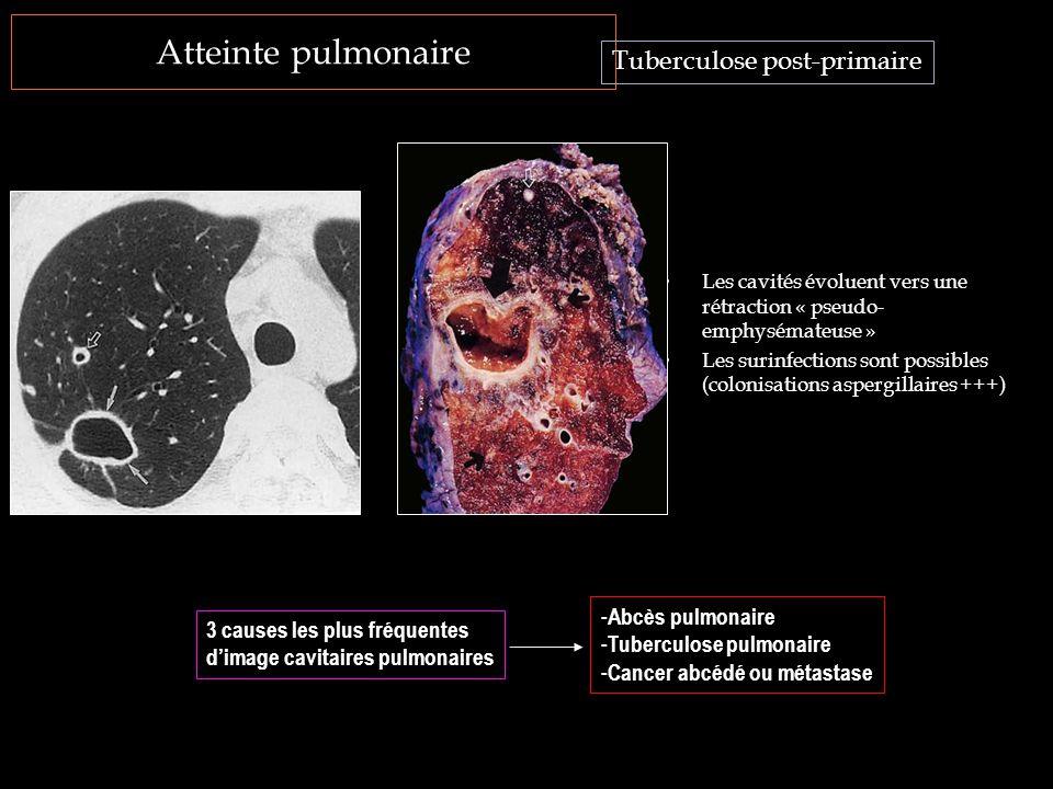 Atteinte pulmonaire Les cavités évoluent vers une rétraction « pseudo- emphysémateuse » Les surinfections sont possibles (colonisations aspergillaires