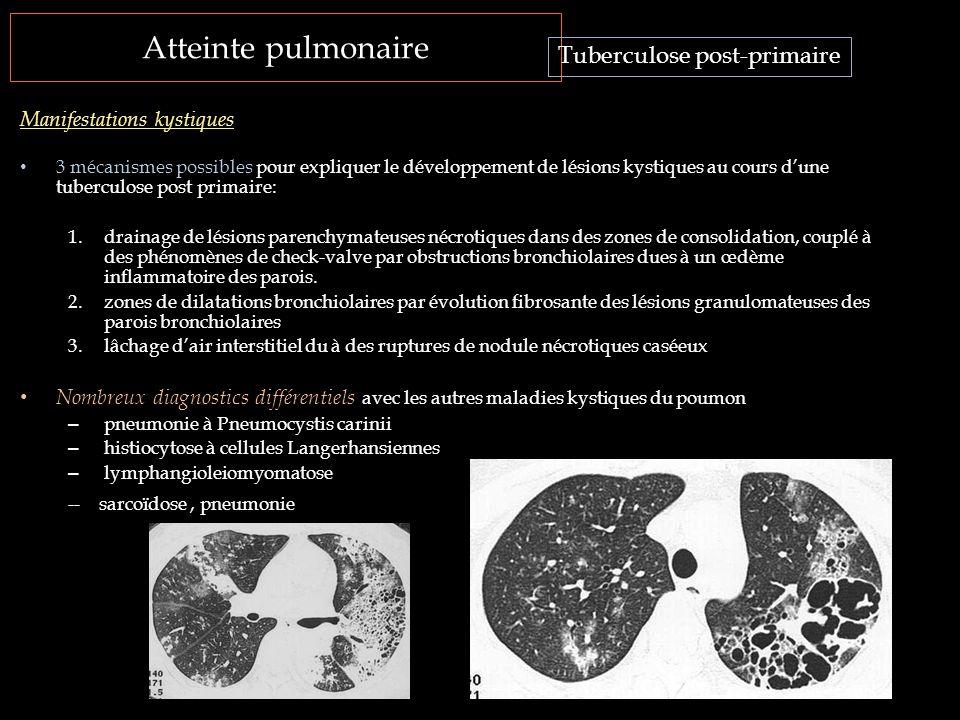 Atteinte pulmonaire Tuberculose post-primaire Manifestations kystiques 3 mécanismes possibles pour expliquer le développement de lésions kystiques au