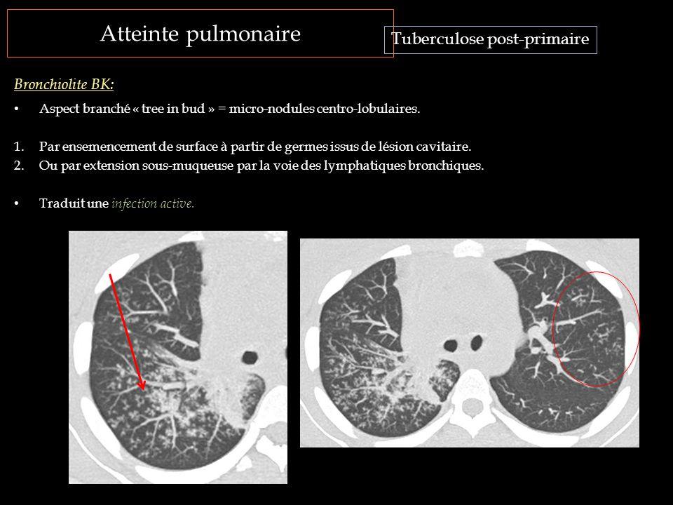 Atteinte pulmonaire Aspect branché « tree in bud » = micro-nodules centro-lobulaires. 1.Par ensemencement de surface à partir de germes issus de lésio