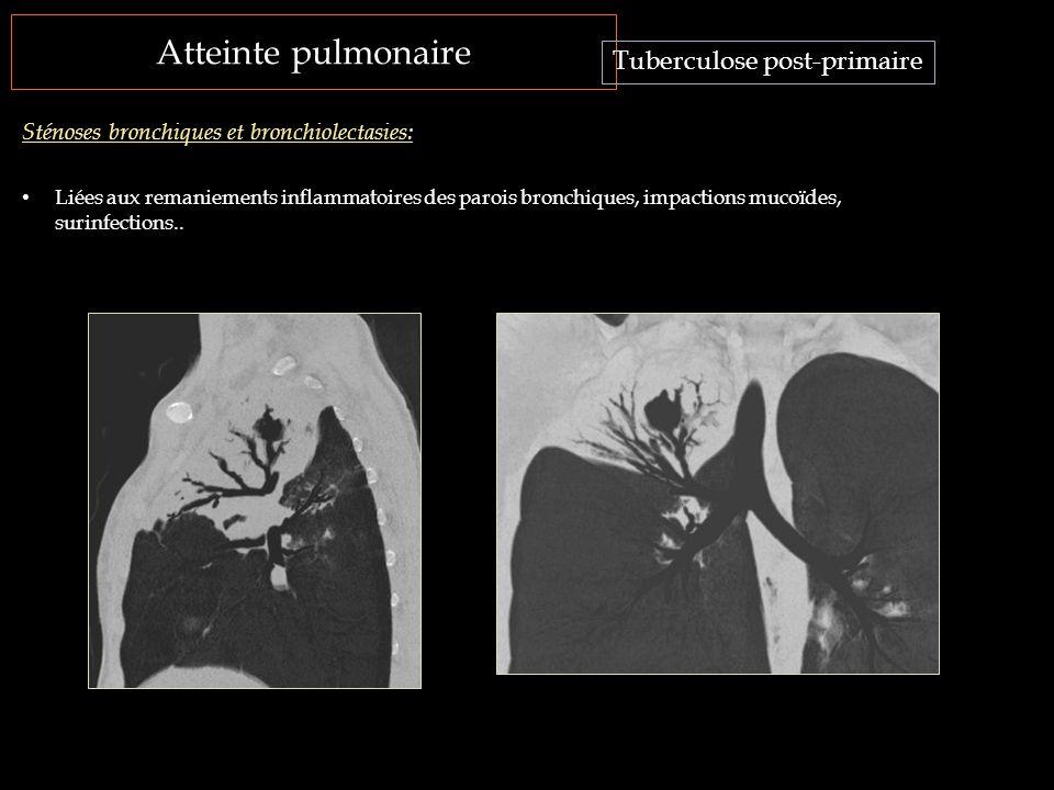 Atteinte pulmonaire Tuberculose post-primaire Sténoses bronchiques et bronchiolectasies: Liées aux remaniements inflammatoires des parois bronchiques,