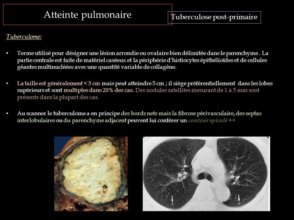 Atteinte pulmonaire Tuberculose post-primaire Tuberculome: Terme utilisé pour désigner une lésion arrondie ou ovalaire bien délimitée dans le parenchy