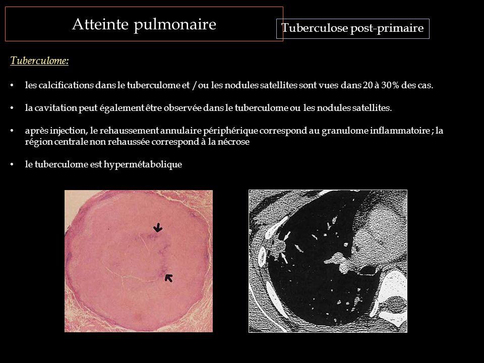 Atteinte pulmonaire Tuberculose post-primaire Tuberculome: les calcifications dans le tuberculome et /ou les nodules satellites sont vues dans 20 à 30