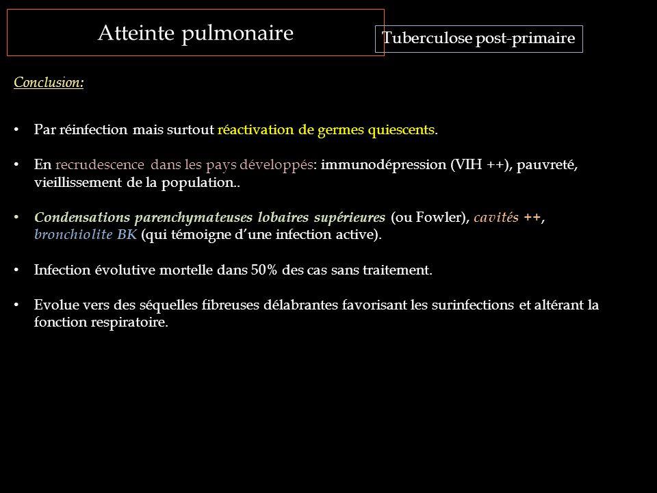 Atteinte pulmonaire Tuberculose post-primaire Conclusion: Par réinfection mais surtout réactivation de germes quiescents. En recrudescence dans les pa