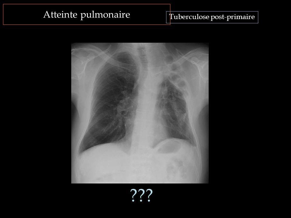 Atteinte pulmonaire Tuberculose post-primaire ???
