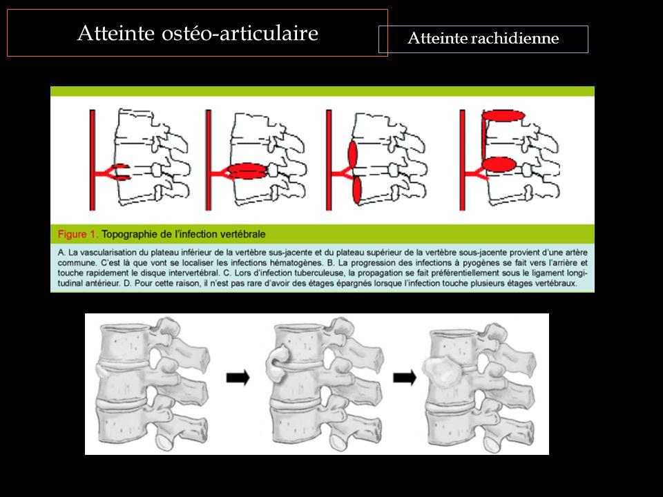 Atteinte ostéo-articulaire Atteinte rachidienne