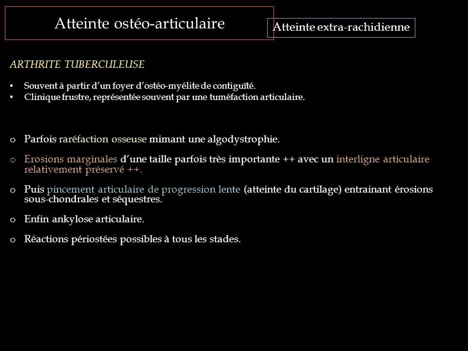 Atteinte ostéo-articulaire Atteinte extra-rachidienne ARTHRITE TUBERCULEUSE Souvent à partir d'un foyer d'ostéo-myélite de contiguïté. Clinique frustr