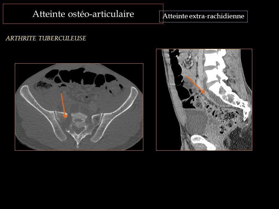 Atteinte ostéo-articulaire Atteinte extra-rachidienne ARTHRITE TUBERCULEUSE