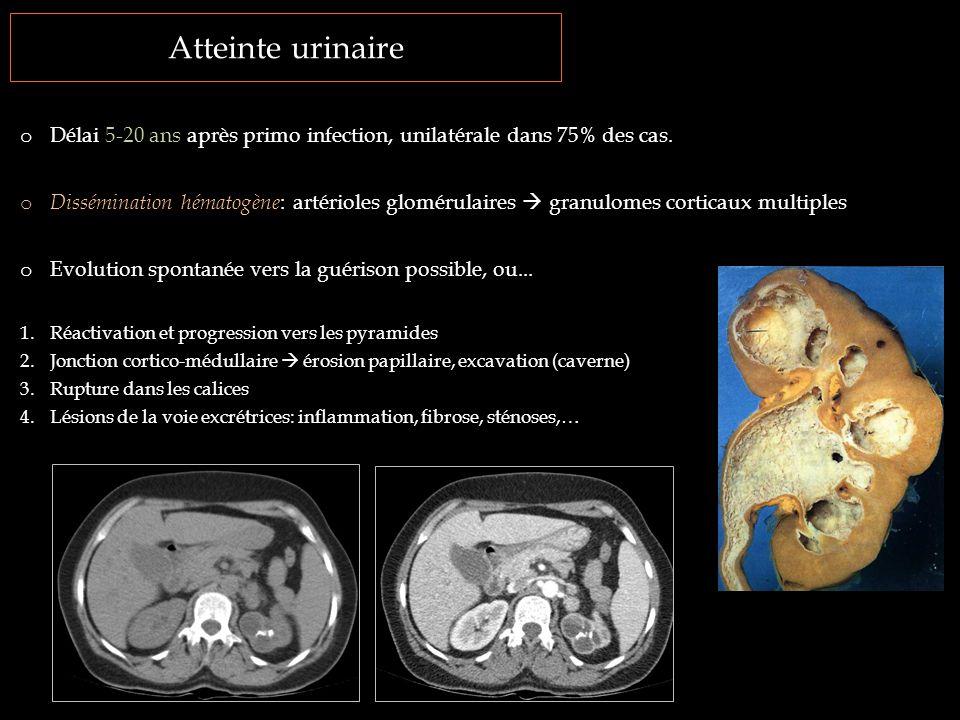 Atteinte urinaire o Délai 5-20 ans après primo infection, unilatérale dans 75% des cas. o Dissémination hématogène : artérioles glomérulaires  granul
