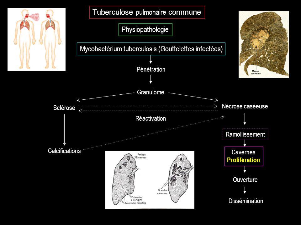 Tuberculose pulmonaire commune Physiopathologie Mycobactérium tuberculosis (Gouttelettes infectées) Cavernes Prolifération Pénétration Granulome Réact