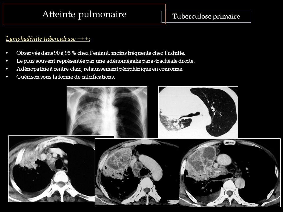 Atteinte pulmonaire Observée dans 90 à 95 % chez l'enfant, moins fréquente chez l'adulte. Le plus souvent représentée par une adénomégalie para-traché