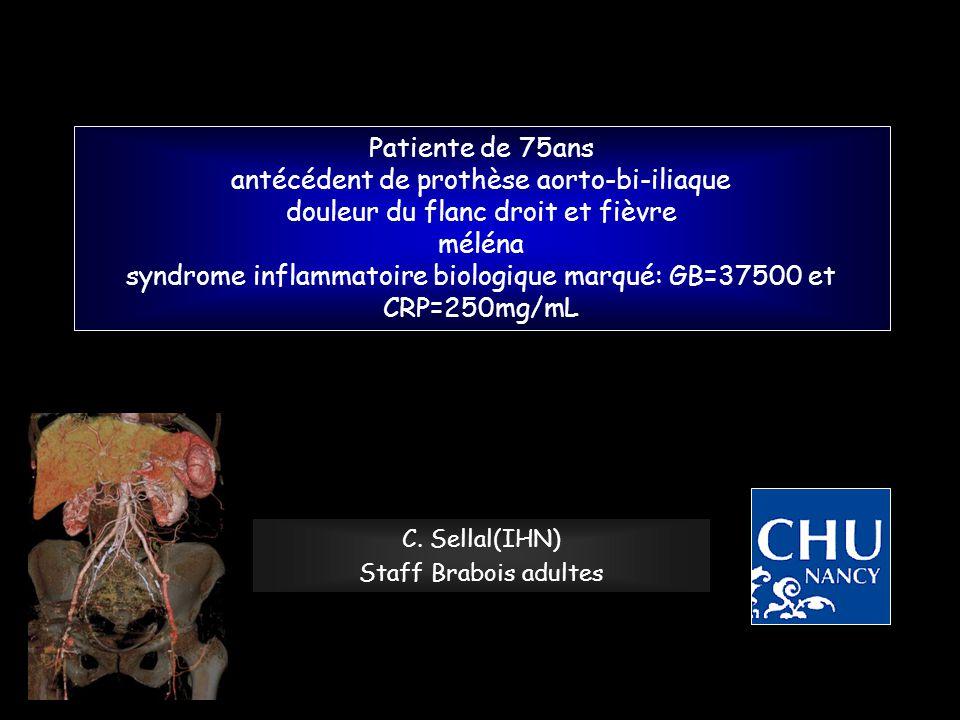 Patiente de 75ans antécédent de prothèse aorto-bi-iliaque douleur du flanc droit et fièvre méléna syndrome inflammatoire biologique marqué: GB=37500 e