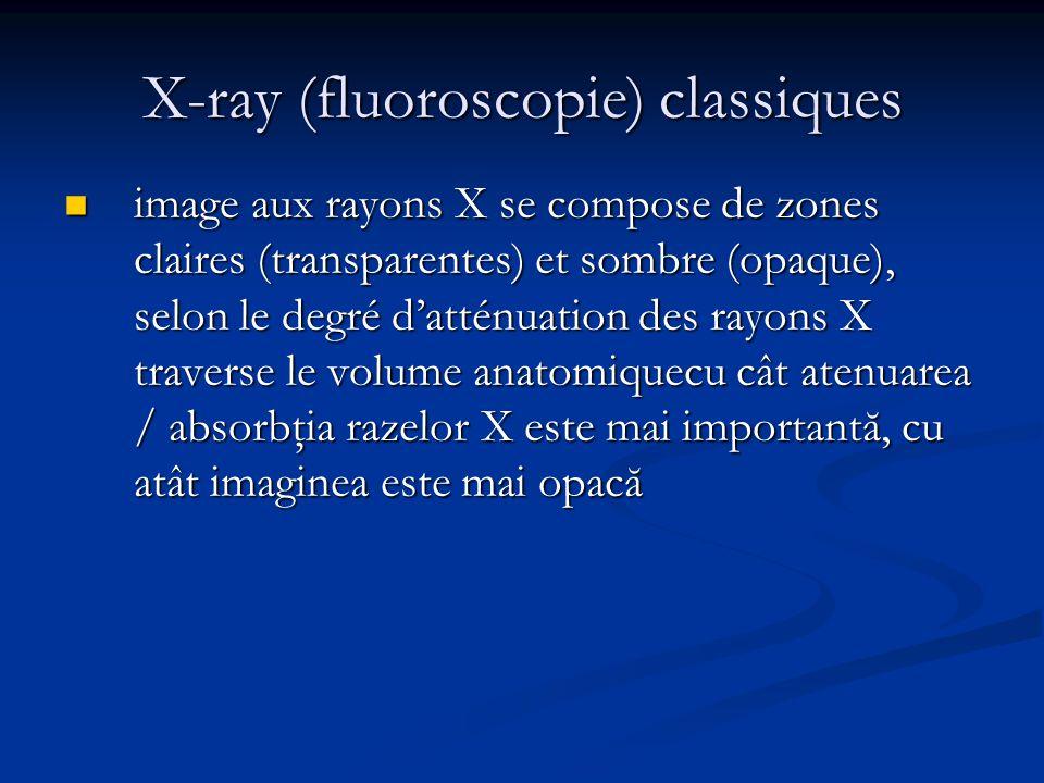 X-ray (fluoroscopie) classiques Classic: écran X-ray (composé chimique fluorescent).