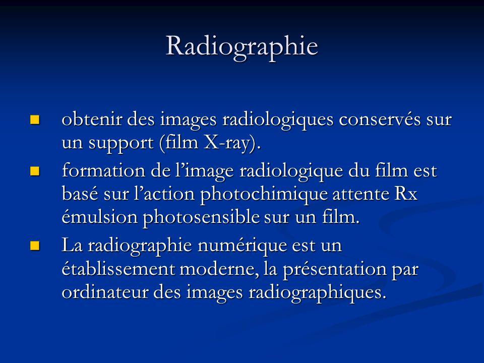 Tomographie par ordinateur (CT) Le principe de mesure CT est basée sur une atténuation du faisceau de rayons X dans une section d'une région anatomique.