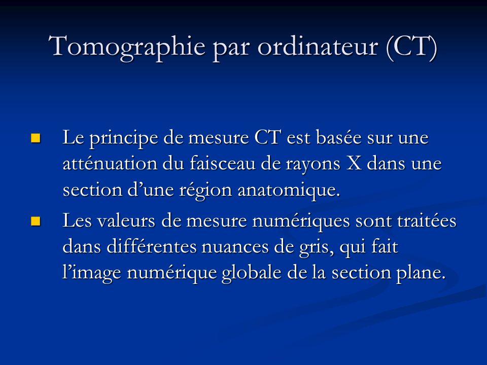 Tomographie par ordinateur (CT)