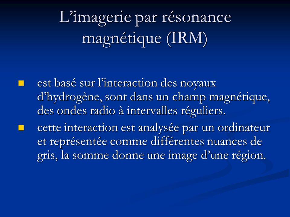 Radiographie * fournit des informations sur : - les dimensions et la forme du cœur, - des processus dynamiques cardiaque, - le volume des cavités cardiaques et lumière vasculaire (en utilisant un agent de contraste iodés).