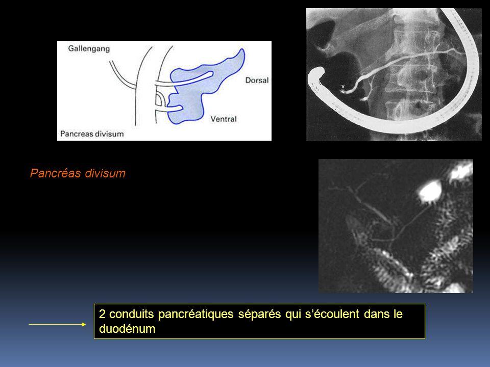 Pancréas divisum : les 2 conduits ne se joignent pas malgré le développement d'un seul organe 2 conduits pancréatiques séparés qui s'écoulent dans le duodénum