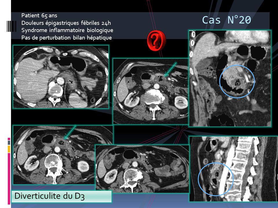 Patient 65 ans Douleurs épigastriques fébriles 24h Syndrome inflammatoire biologique Pas de perturbation bilan hépatique Diverticulite du D3 Cas N°20