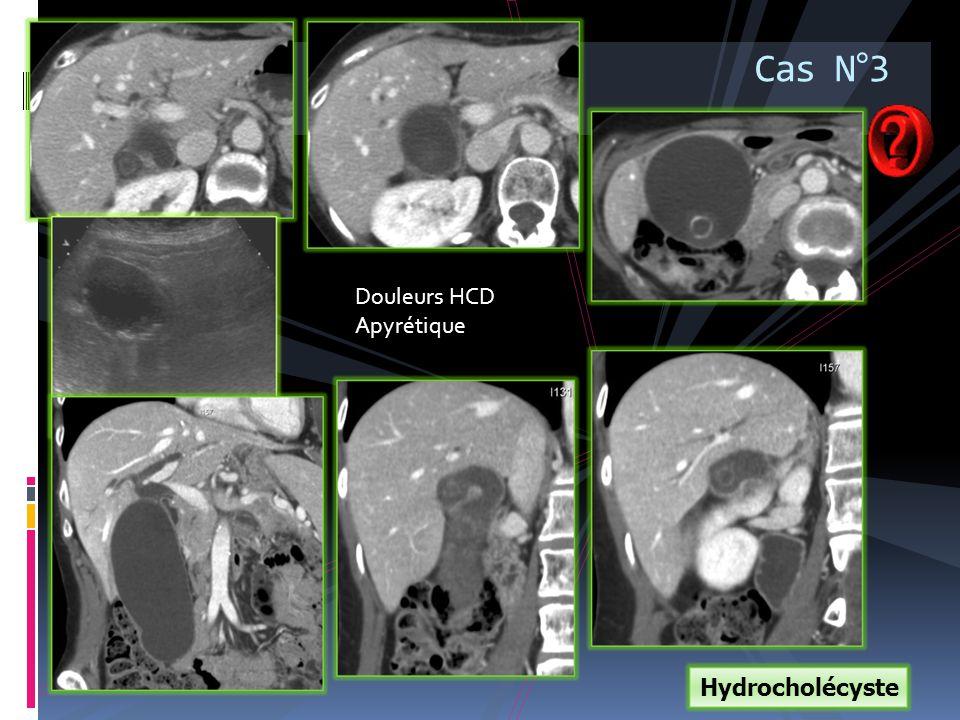 Hydrocholécyste Cas N°3 Douleurs HCD Apyrétique